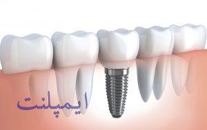 عصب کشی دندان در کرج
