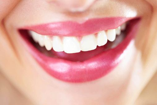 لمینت دندان در کرج