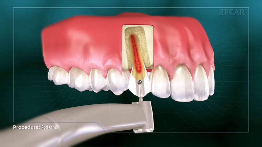 قیمت عصب کشی دندان در کرج