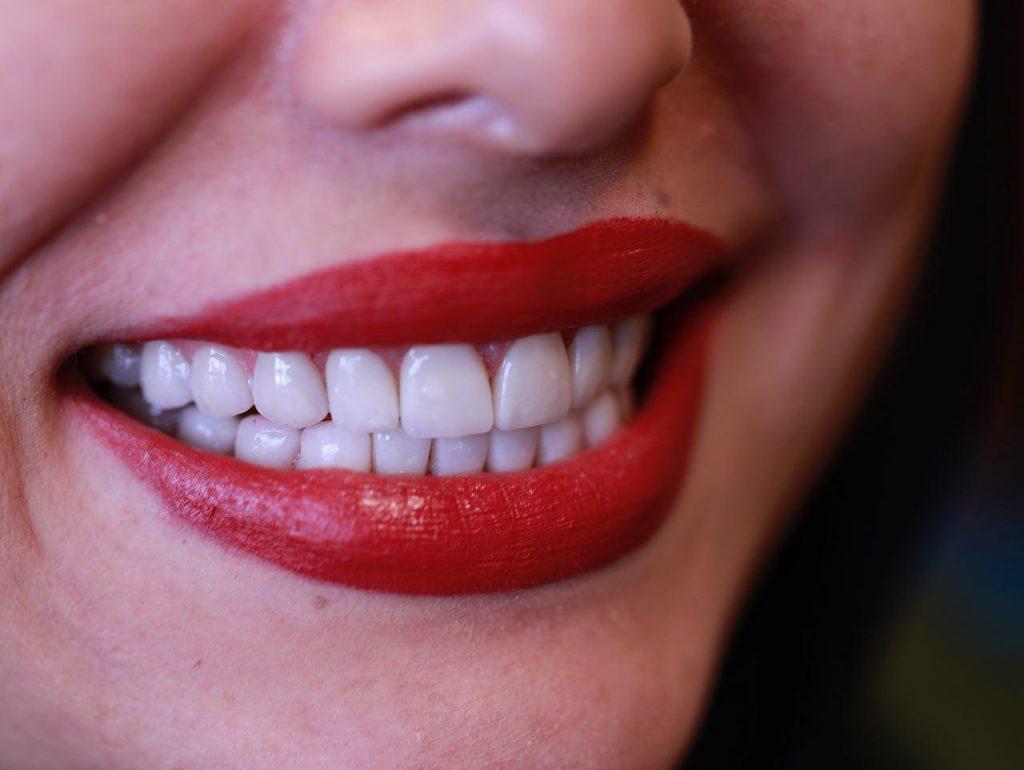 زیبایی دندان در کرج