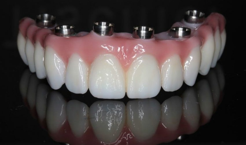 کاشت دندان در کرج
